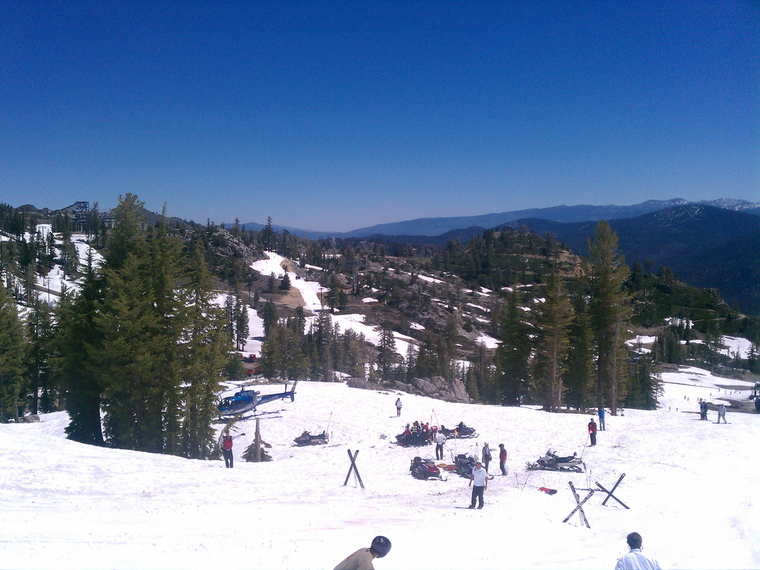 Thumb ski jump injury