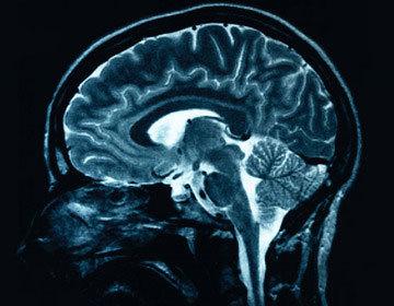 Thumb thumb brain injury or damage