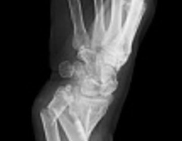 Thumb thumb fractures